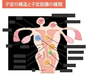 チクチク 右 下 腹部 痛